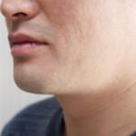 髭の脱毛方法(クリニック・自宅など)の効果や値段の比較をご紹介!
