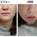 【驚愕】湘南美容でBNLSneoを体験、1ヶ月でここまで変わった!