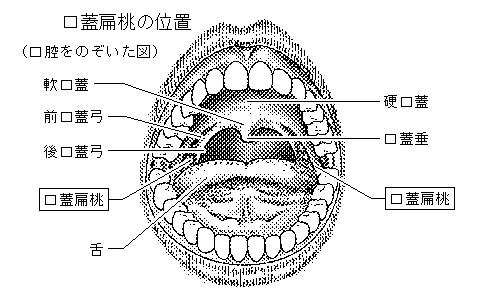 扁桃(口蓋扁桃)の図 まとめ 扁桃炎(扁桃腺炎)とは 出典:Goo辞書家庭医学館「のどのしくみと