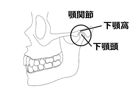 外川正-入門顎関節症治療のための咬合分析と診断/一部改変