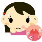 治らない口内炎は病気?4つの口内炎の原因や治し方、セルフケアや予防法を説明します。